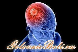 3D изображение развития менингиомы в головном мозге