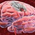 Головной мозг пораженный опухолью