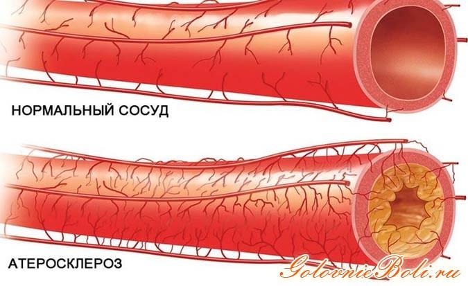 Сосуды атеросклероза