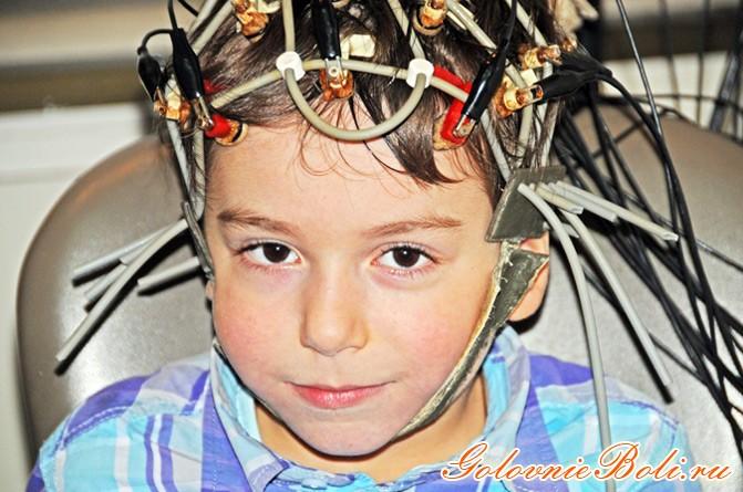 голова в электродах